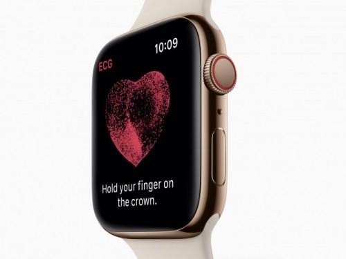 Apple Watch: Freischaltung des EKG-Features geplant?